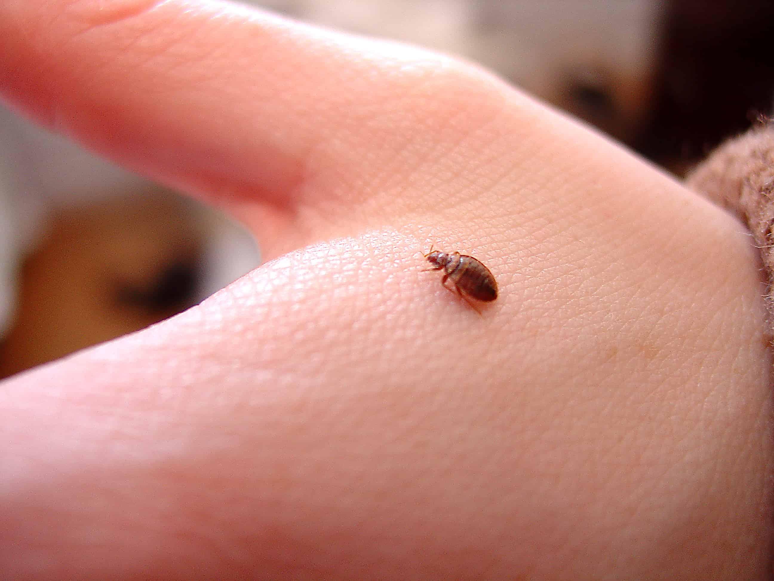 2 Maneras Sencillas de Tratar las Picaduras de Insectos en la Cama (en casa): Identificación, Imágenes, Síntomas