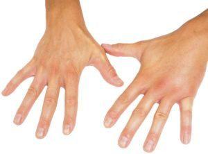 Comparando las manos masculinas hinchadas aisladas hacia el fondo blanco.
