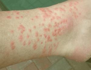 Chigger muerde los síntomas en el pie del ser humano