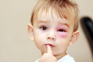 niño pequeño con un ojo hinchado