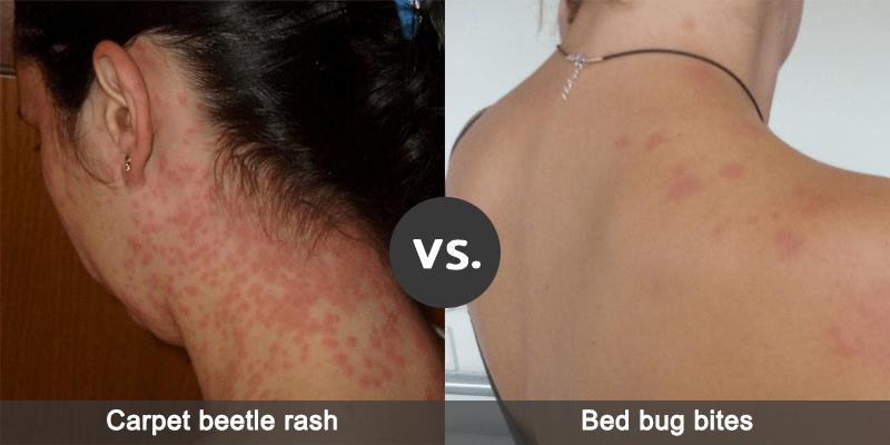 Diferentes reacciones de la piel de los bichos de la cama y picaduras de escarabajo de la alfombra