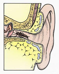 alambre de oreja entrando en la oreja