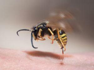 Wasp picadura saca de la piel humana.